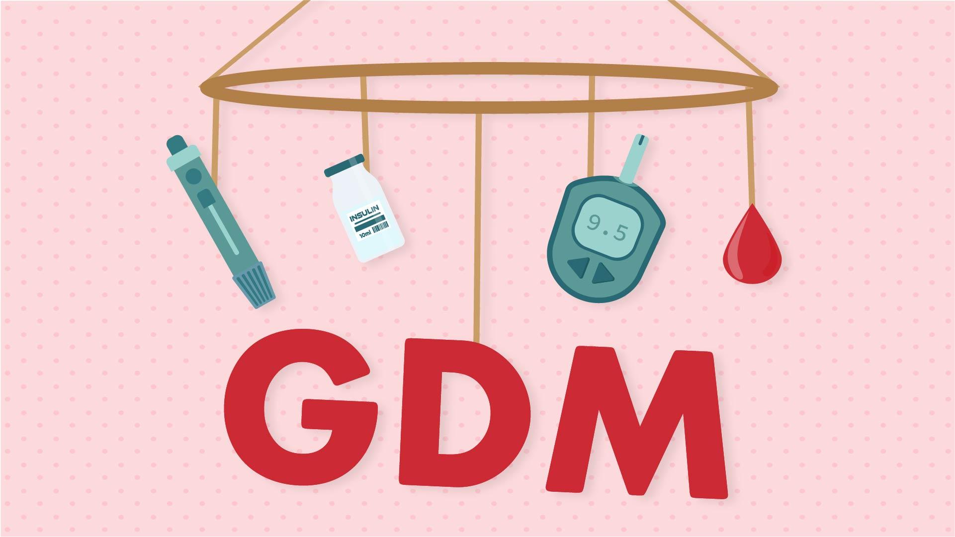 Cover image for: Gestational Diabetes Mellitus