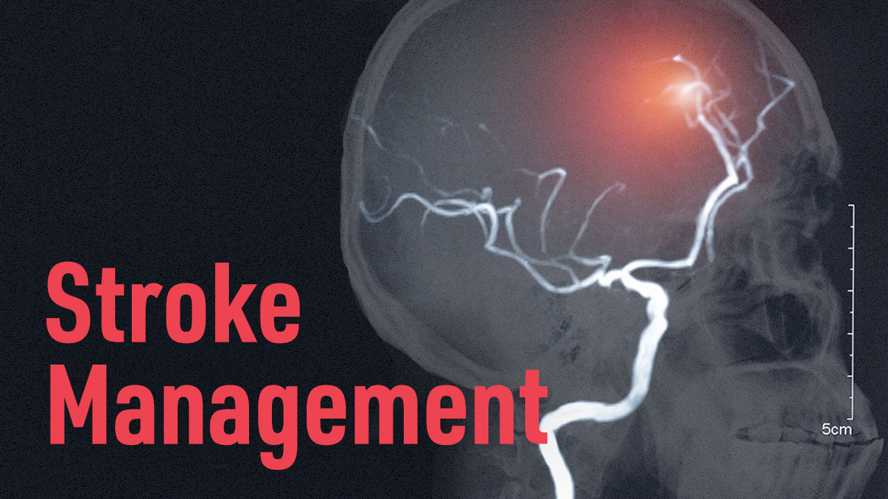 Cover image for: Stroke Management